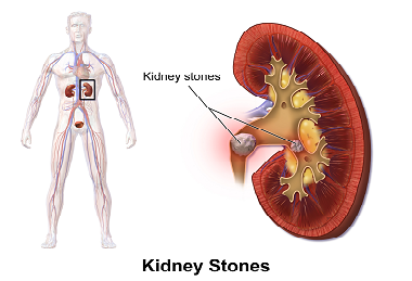 6 EASY WAYS TO PREVENT KIDNEY STONES