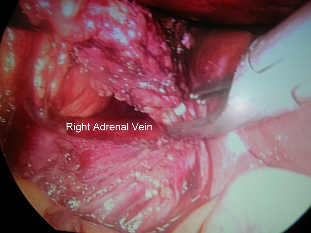 LAPAROSCOPIC ADRENALECTOMY RIGHT SIDE